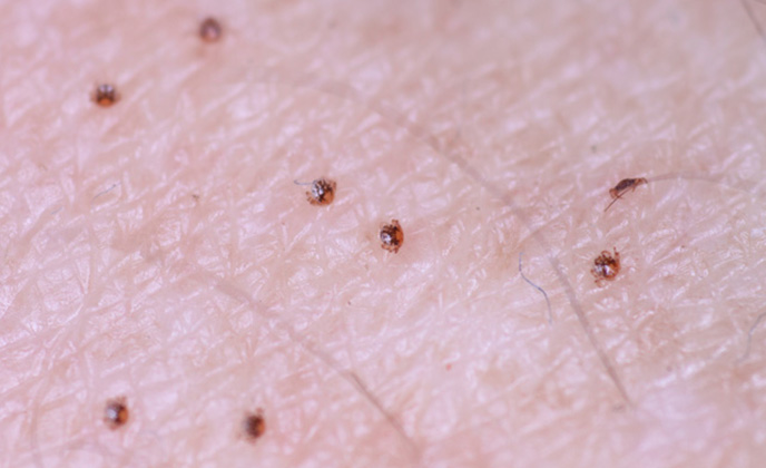 Closeup of Tick Bites
